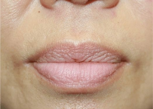 www.ruthswissa.com - Permanent Makeup and Skin -- Image 33111b