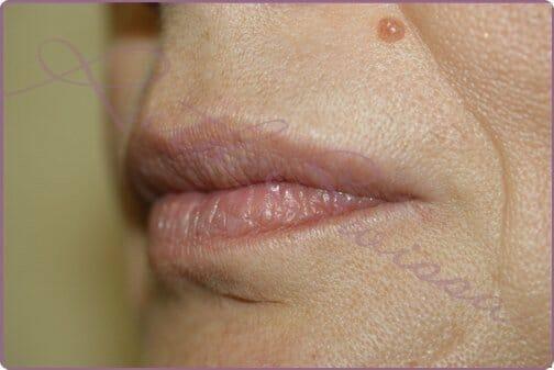 Lips-1-2
