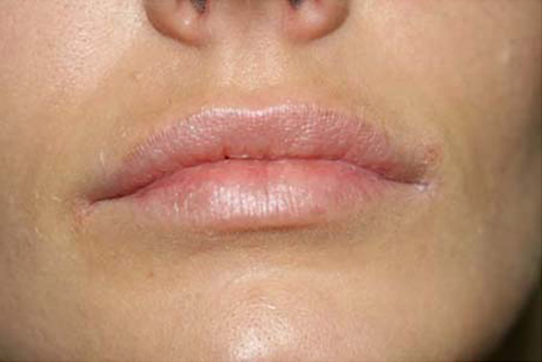 Permanent lips before ruth swissa