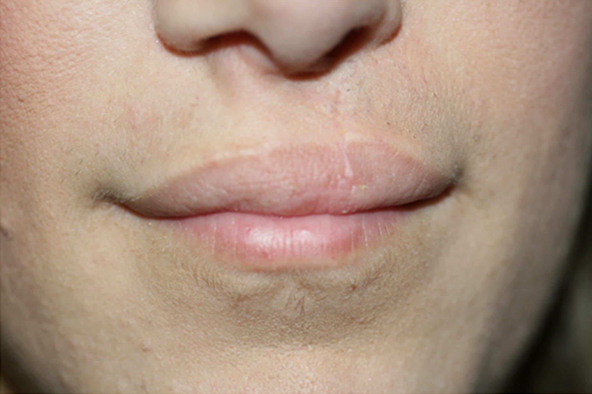cleft pellet cleft palet cleft pallet cleft pelet lip discoloration, permanent lipstick lip camouflage lip whitenening, dark lips pink lips permanent lips full lips beverly hills agoura hills medical micropigmentation permanent makeup