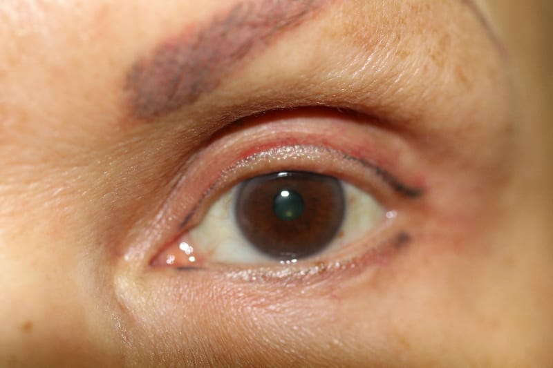 ruth swissa, beverly hills, los angeles, agoura hills, permanent makeup correction eyeliner, permanent eyeliner, permanent makeup corrections medical micropigmentation