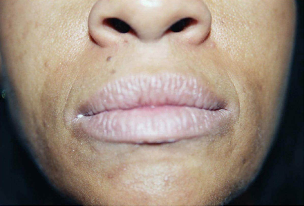 lips before ruth swissa full lips permanent makeup