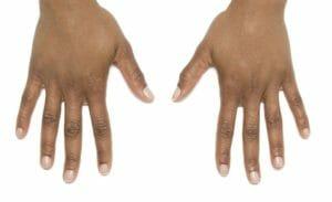 hands zondra after