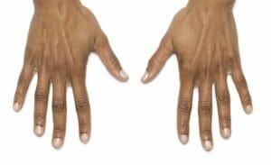 hands zondra before
