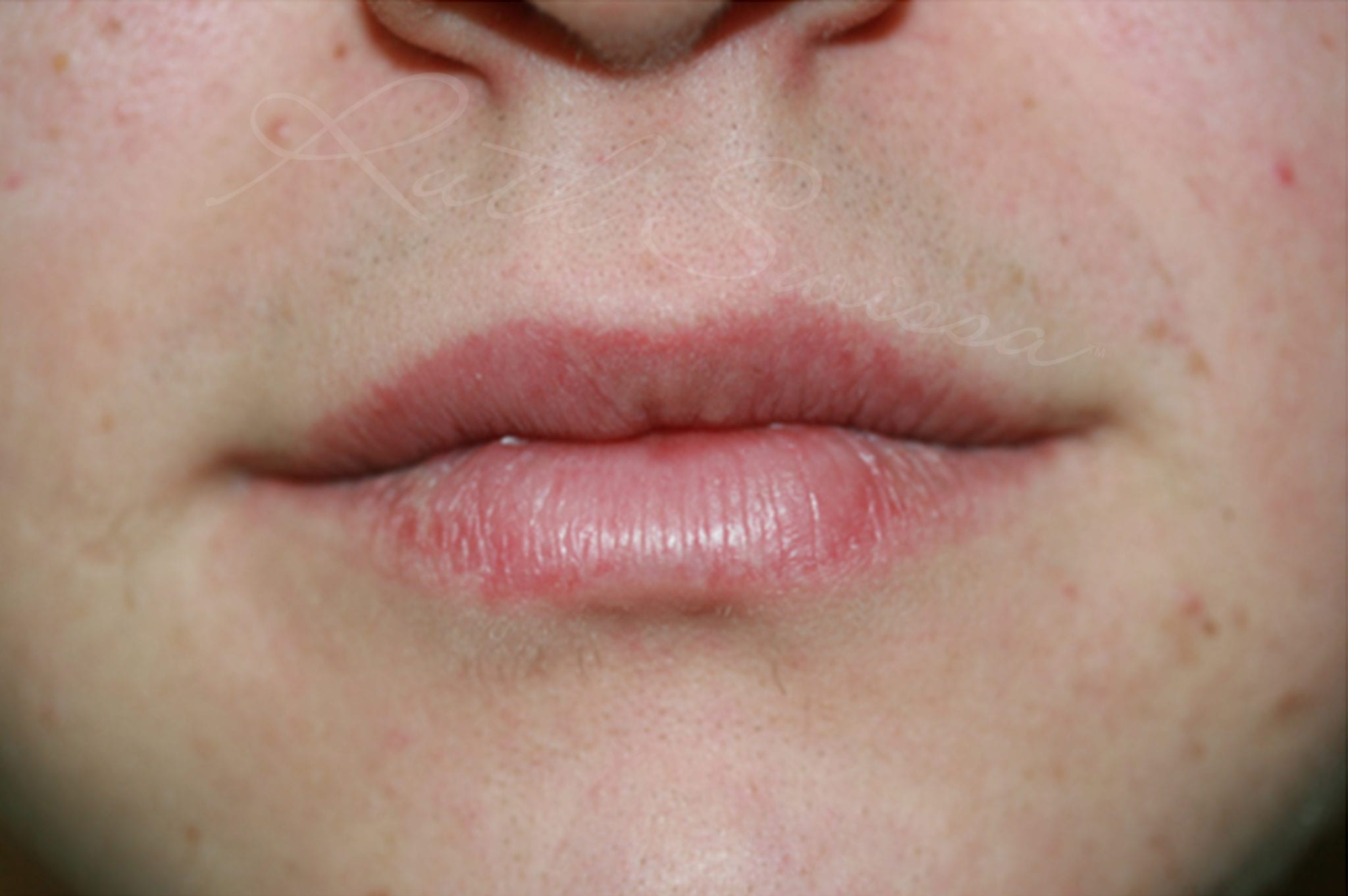 Lip discoloration ruth swissa after permanent lipstick