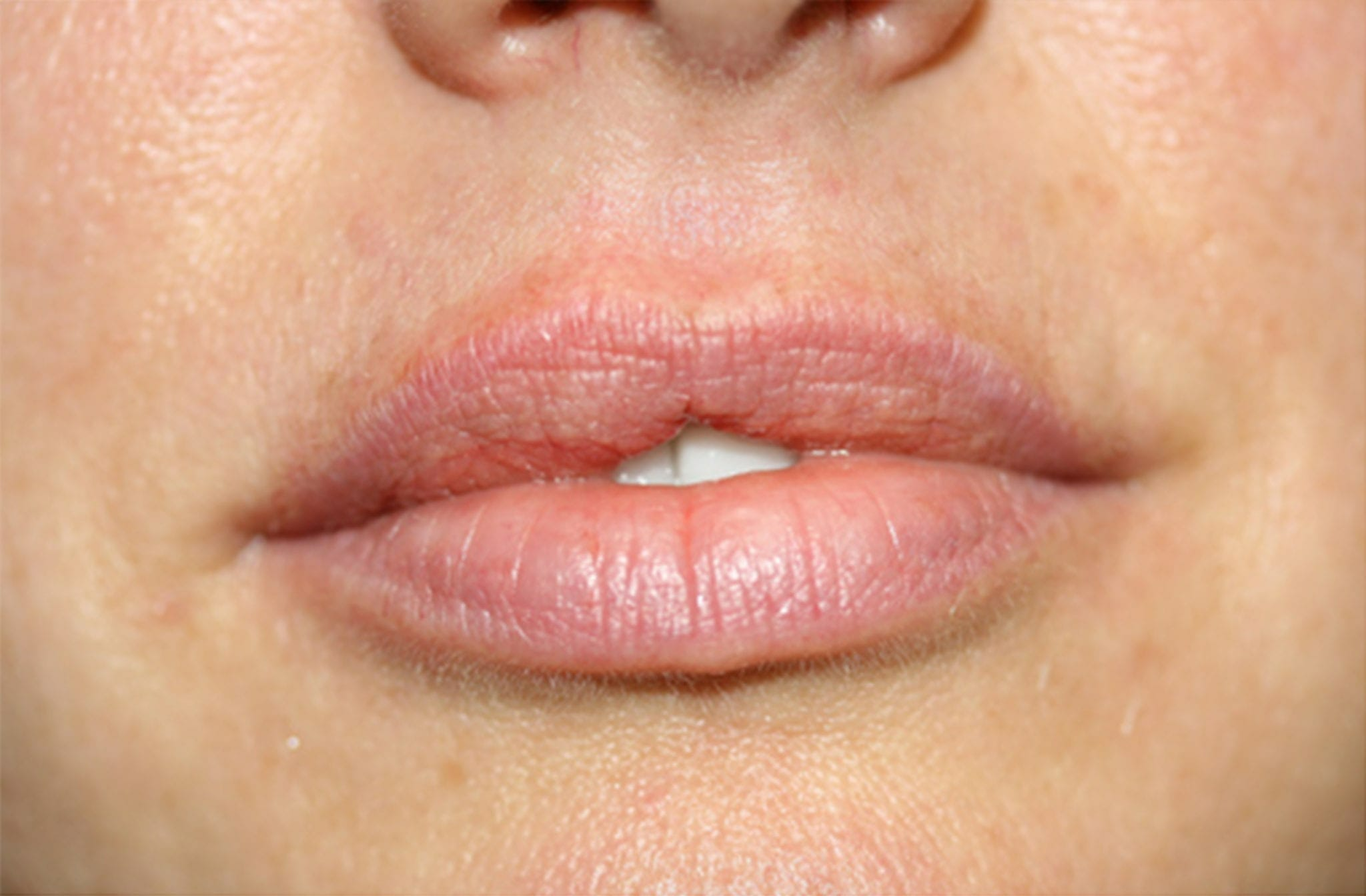 lip discoloration, permanent lipstick lip camouflage lip whitenening, dark lips pink lips permanent lips full lips beverly hills agoura hills medical micropigmentation permanent makeup
