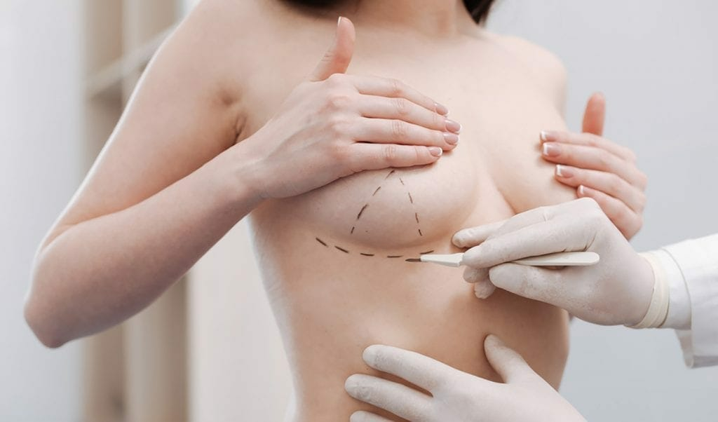 What Things To Consider Before Undergoing Breast Augmentation Surgery